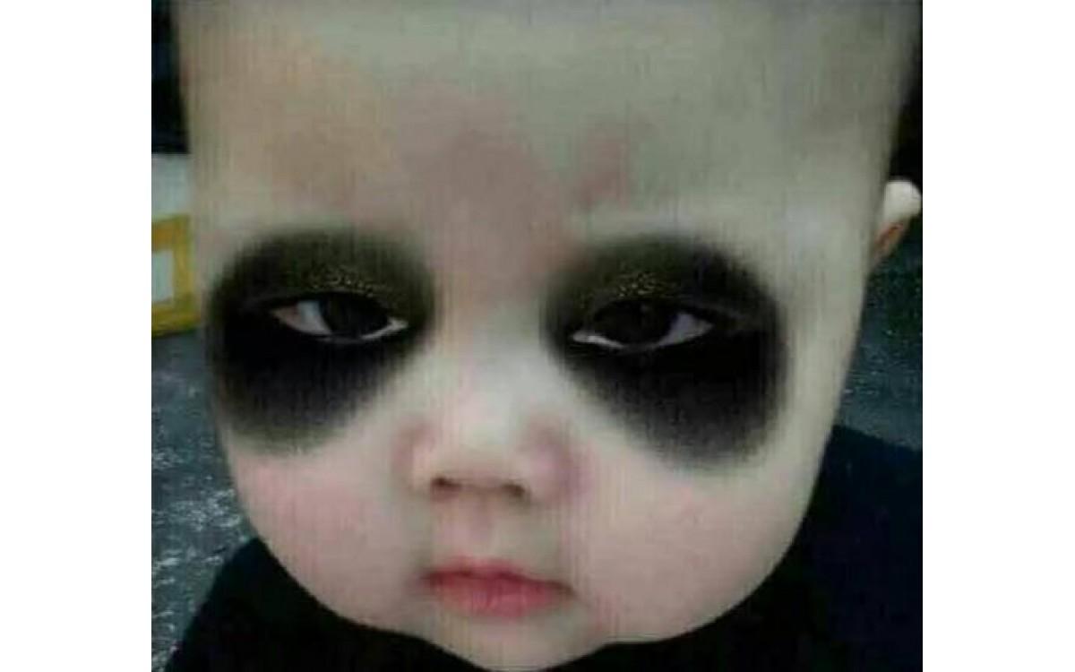 中医祛除黑眼圈