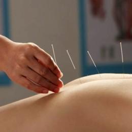 什么是针灸?